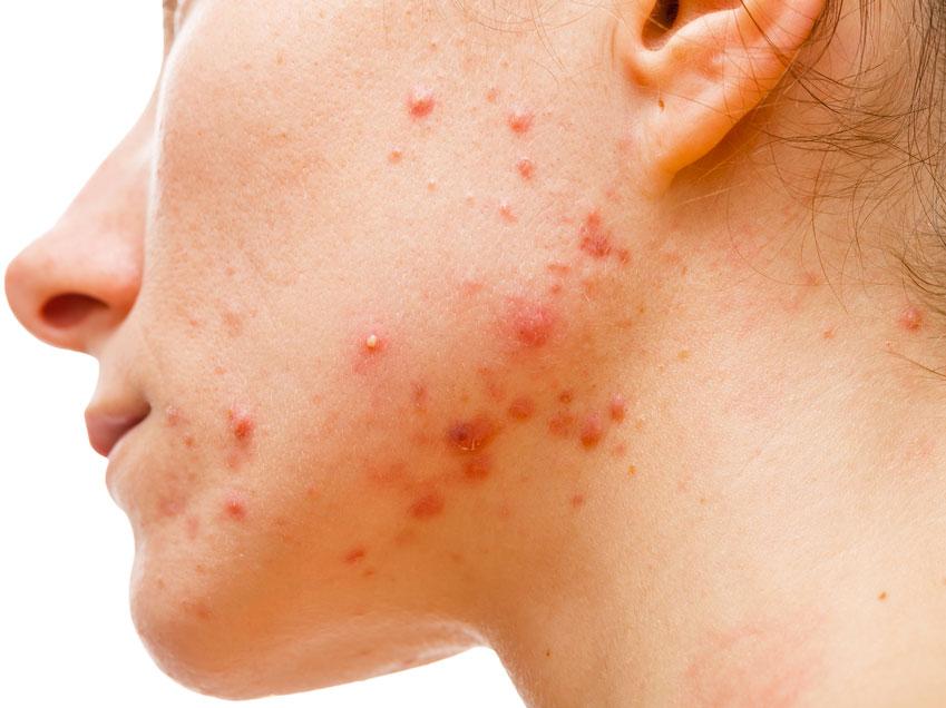 acne-tardiva-3